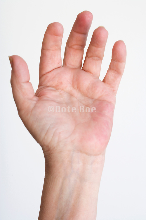 female hand with partly missing finger