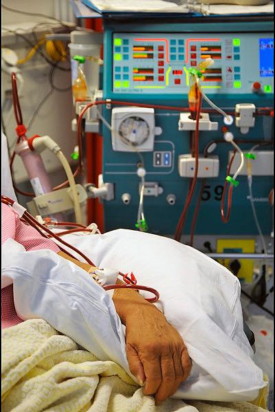 Nederland, Nijmegen, 6-8-2008Een patient, patiënt ligt aan de dialysemachine om de nieren te spoelen.Foto: Flip Franssen
