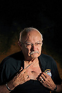 Bay of Pigs veteran, Jorge Gutierrez, shows the damage to his chest caused by a machine gun 7.62 caliber bullet that penetrated his shoulder blade, through his right lung and exited his chest. He was part of an infiltration team during preparation of the Bay of Pigs assault in Cuba. He is a member of the Bay of Pigs Veterans Association, Brigade 2506