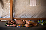 A child with malnutrition in the Outpatient Division operating under MSF-France in Carnot Hospital, Carnot, Central African Republic.