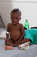 Bill Clinton Joseph , 9 months old  being treated in a cholera treatment center in the Tabarre section of Port-au-Prince run by Doctors without Boarders (MSF) that treats hundreds of cholera patients a day.
