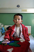 A Child recovers from open heart surgery in Lanzhou.