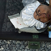An injured 16-year-old Afghan boy waits to be evacuated to a hospital for treatment for injuries from an apparent Improvised Explosive Device (IED). He was treated along with three other civilians at a military medical facility at a Forward Operating Base on the front lines in Zhari District Afghanistan. Soldiers felt that the civilians injuries seemed more associated with an accident from setting an IED than stumbling across one. Canadian doctors and medics were able to save three of the four civilians injured in the explosion.