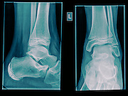 Healthy X-ray of an ankle 12 year old male