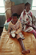 A young Somalian girl recovering the hospital after losing her leg to a landmine in Hargeisa, capital of Somaliland, an unrecognized breakaway Republic of Somalia. The three leading causes of death in Somalia are gastro-enteritis, T.B. and trauma, mostly from land mines, gun shots, and car accidents. March 1992.