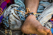 29 OCTOBER 2012 - MAYO, PATTANI, THAILAND:  A patient's leg shackles at the Bukit Kong home in Mayo, Pattani. The home opened 27 years ago as a ponoh school, or traditional Islamic school, in the Mayo district of Pattani. Shortly after it opened, people asked the headmaster to look after individuals with mental illness. The headmaster took them in and soon the school was a home for the mentally ill. Thailand has limited mental health facilities and most are in Bangkok, more than 1,100 kilometers (650 miles) away. The founder died suddenly in 2006 and now his widow, Nuriah Jeteh, struggles to keep the home open. Facilities are crude by western standards but the people who live here have nowhere else to go. Some were brought here by family, others dropped off by the military or police. The home relies on donations and gets no official government support, although soldiers occasionally drop off food. Now there are only six patients, three of whom are kept chained in their rooms.  Jeteh says she relies on traditional Muslim prayers, holy water and herbal medicines to treat the residents. Western style drugs are not available and they don't have a medic on staff.    PHOTO BY JACK KURTZ