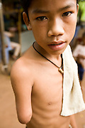 26 JUNE 2006 - SIEM REAP, CAMBODIA: CHIN BOREAK, 13, waits for tourists in front of the landmine museum in Siem Reap, Cambodia. He lost his arm when he picked up a piece of unexploded ordinance along the Thai-Cambodian border, near his family farm. Aki Ra was a child soldier drafted by first the Khmer Rouge and later the Vietnamese army. One of his responsibilities was to plant land mines for both sides. After peace came to Cambodia he started his own demining operation. He has been clearing landmines in Cambodia since 1990. Cambodians are still wrestling with the legacy of the war in Vietnam and subsequent civil wars. At one time it was the most heavily mined country in the world and a vast swath of Cambodia, along the Thai-Cambodian border, is still mined. In 2004, more than 800 people were killed by mines and unexploded ordinance still found in the countryside. In addition to the demining operation, Aki Ra has an orphanage for 20 kids maimed by mines. In addition to demining operations Aki Ra has an orphanage for 20 children maimed by mines.   Photo by Jack Kurtz