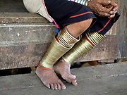 Close up of a Kayan Padaung ethnic minority womans brass leg rings on 23rd January 2016 in Kayah State, Myanmar. Myanmar is one of the most ethnically diverse countries in Southeast Asia with 135 different indigenous ethnic groups. There are over a dozen ethnic Karenni subgroups in the region including the Kayan who are perhaps the best known due to the traditional practice of the Kayan women extending their necks with brass rings. It is very unusual to see a woman wearing brass leg rings