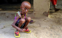 April 26, 2017 - UTTAR PRADESH, INDIA - UTTAR PRADESH, INDIA - 2017 : Rupesh, 21, who suffers from a rare Hutchison Gilford Progeria Syndrome (a rare genetic condition that causes a child's body to age fast) pictured at his residence in Dharecha village of Hanumanganj district in Uttar Prdesh, India.....Rupesh's body started showing abnormal changes as he grew older. His head became bigger while his body shrivelled. At just 21, Rupesh now looks like an old man. (Credit Image: © Cover Asia Press/Cover Asia via ZUMA Press)