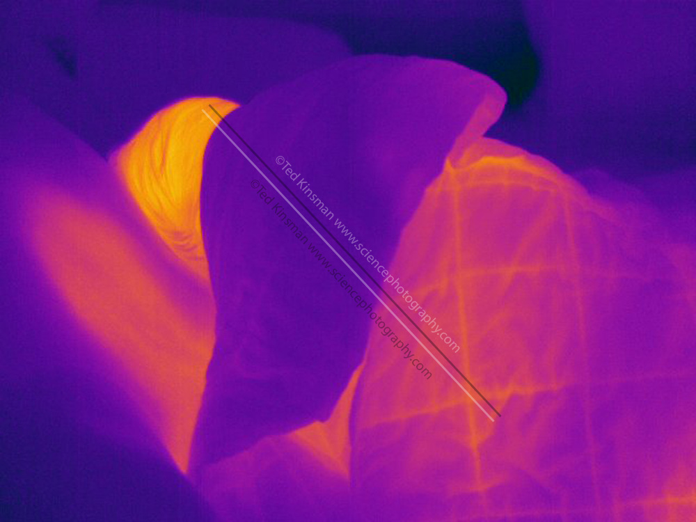 A Thermogram of a young girl sleeping.  This image is part of a series.  The different colors represent different temperatures on the object. The lightest colors are the hottest temperatures, while the darker colors represent a cooler temperature.  Thermography uses special cameras that can detect light in the far-infrared range of the electromagnetic spectrum (900?14,000 nanometers or 0.9?14 µm) and creates an  image of the objects temperature..