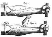 William Harvey (1578-1657) English physician. Diagram from 'De Motu Cordis', 1628. When tourniquet applied valves in veins B,C,D,E,F  Fig.1. show. Vein at valve at OH Fig.2. fades when supply stopped at H, but distended at O,G. Circulation of the blood. Engraving.