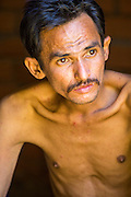 "29 OCTOBER 2012 - MAYO, PATTANI, THAILAND:  A patient at the Bukit Kong home in Mayo, Pattani. He said one of his names is Sukria, but then added, ""I have so many names I don't remember who I am anymore."" He is kept shackled in his room at the home. The home opened 27 years ago as a ponoh school, or traditional Islamic school, in the Mayo district of Pattani. Shortly after it opened, people asked the headmaster to look after individuals with mental illness. The headmaster took them in and soon the school was a home for the mentally ill. Thailand has limited mental health facilities and most are in Bangkok, more than 1,100 kilometers (650 miles) away. The founder died suddenly in 2006 and now his widow, Nuriah Jeteh, struggles to keep the home open. Facilities are crude by western standards but the people who live here have nowhere else to go. Some were brought here by family, others dropped off by the military or police. The home relies on donations and gets no official government support, although soldiers occasionally drop off food. Now there are only six patients, three of whom are kept chained in their rooms.  Jeteh says she relies on traditional Muslim prayers, holy water and herbal medicines to treat the residents. Western style drugs are not available and they don't have a medic on staff.    PHOTO BY JACK KURTZ"