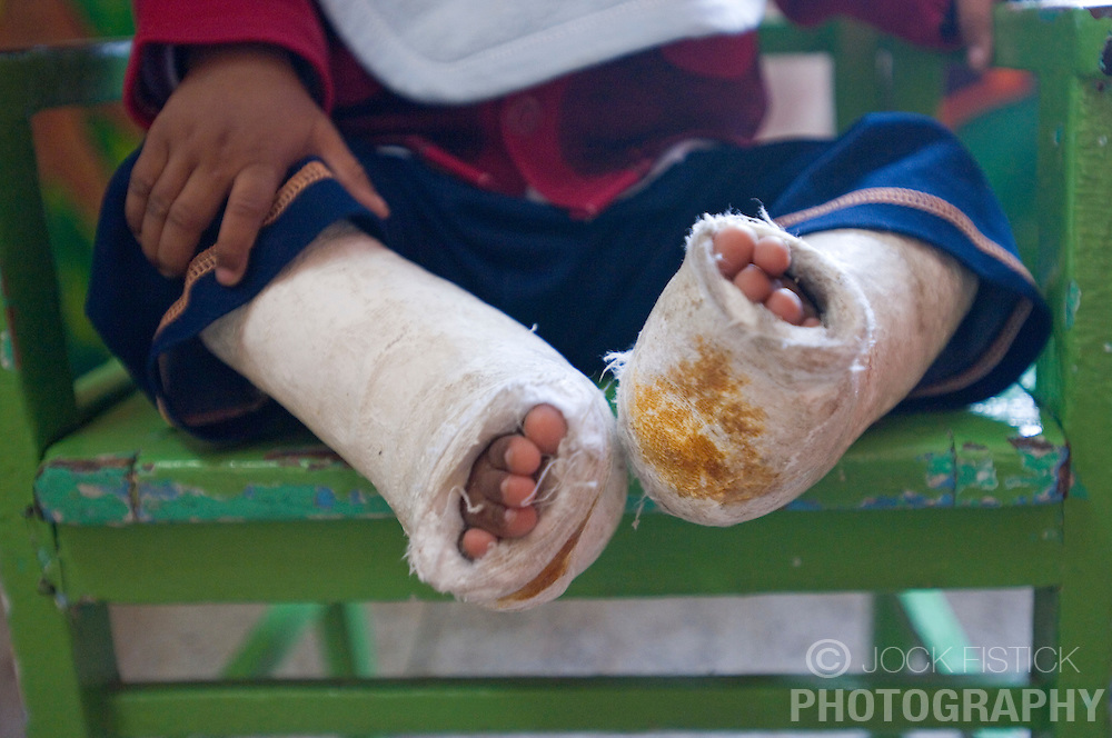 RAWALPINDI, PAKISTAN - NOV-01-2006 - A young boy suffering from two broken legs, is treated at St. Joseph Hospice. The hospice was started by Father Francis O'Leary, an Irish missionary, in 1964. Franciscan nuns of the Missionaries of Mary, run the hospice and have a fully trained staff of 26 Pakistani nurses aides and volunteer doctors. The hospice, orphanage and free clinic has 60 beds for resident patients and treats 80-90 out patients daily.  All medical services are free of charge to resident patients at St. Joseph's, regardless of the cost, duration or type of treatment required. The hospice is supported solely by donations.  (PHOTO © JOCK FISTICK)