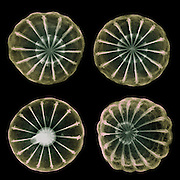 X-ray of the seedpod of an opium poppy (Papaver somniferum), an annual garden ornamental and a source of opiate narcotics.