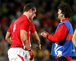© SPORTZPICS/ Seconds Left Images 2011 -Wales' George North is treated as blood pours from a head wound injury -  Wales v Australia - Rugby World Cup 2011 - Bronze Final - Eden Park - Auckland - New Zealand - 21/10/2011 -  All rights reserved..