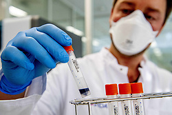 Employees carry on 500 coronavirus tests a day in the Microvida laboratory, Bravis hospital in Roosendaal, Netherlands, April 2, 2020. The number of deaths caused by an infection with the new coronavirus in the Netherlands has increased by 166 to 1,339, health authorities said on Thursday. Photo by Robin Utrecht/ABACAPRESS.COM