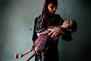 Zubin, 3, a severely disabled girl, is being held by her mother inside their home in one of the water-affected colonies near the abandoned Union Carbide (now DOW Chemical) industrial complex in Bhopal, Madhya Pradesh, India, site of the infamous 1984 gas tragedy. The poisonous cloud that enveloped Bhopal left everlasting consequences that today continue to consume people's lives. Zubin has deceased.