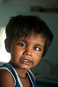 India, Bihar. Mastichak. Akhand Jyoti Eye Hospital. A young boy with a cataract in his left eye.