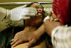 Falah Mohammed, 12, gets treatment for burn wounds to the face at Nohman Hospital, Baghdad, Iraq, March 2, 2004. He was injured when at least two suicide bombers blew themselves up outside of Al-Kadhimiya Mosque in Baghdad, where thousands of Shia Muslims had gathered to celebrate the Ashura religious festival. In what coalition authorities said was a coordinated attack, several bombs exploded in the holy city of Karbala as well, where an estimated two million Shias from Iraq, Iran, Pakistan and as far away as Canada had gathered for the holiday, which commemorates the martyrdom of Imam Hussein, grandson of the Prophet Mohammed. At least 143 people were killed in the combined attacks.