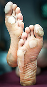 Brett Maune's feet after winning the Barkley Marathons.