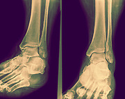 X-ray of an ankle 50 year old male with a fractured distal tibia. front View