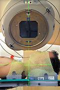 Nederland, Nijmegen, 20-5-2009Patient ligt klaar voor bestralingsbehandeling met een lineaire versneller op de afdeling radiotherapie van het UMC Radboud. Wachtlijsten. gezondheidszorg. Automatisering, ziekenhuis. Bestralen, kanker, nucleaire geneeskunde. (Patient is medewerker afdeling.)Foto: Flip Franssen