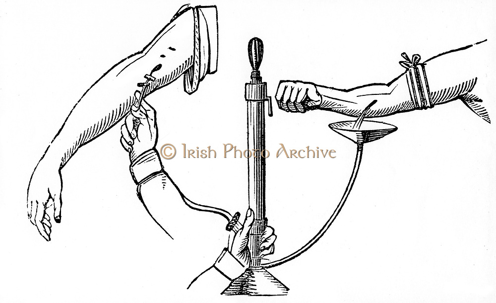 Person-to-person blood transfusion.  In Read's method depicted here, blood from the donor is passed through a pumped and forced into recipient's arm via a canula. From 'The British Cyclopaedia of Arts and Sciences', Charles Partington, 1833. Woodcut.