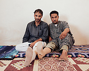 Gewaida Hameda Mertha (left) stepped on a mine in the desert at Sidi Shabeb in 2008. He was found by friends and taken to hospital in Alexandria where he remained unconscious for two days. His left leg was amputated below the knee. Mertah Awad Egail (right) stepped on a mine at Sidi Shabeb in 2007. He lost his right leg above the knee and remained unconscious for six hours. The metal rod that had to be inserted into his leg still causes him pain. Both men were aware of the unexpolded ordnance in the desert but didn't realise that the minefields extended so far west from El Alamein.