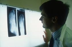 Doctor examining patient's Xrays,
