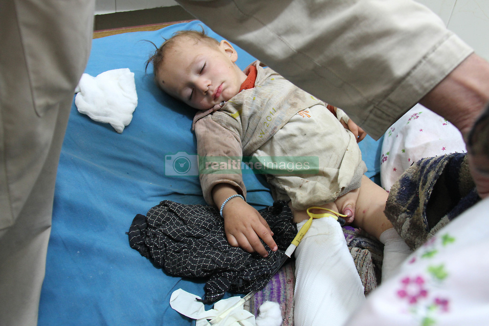 January 2, 2018 - Jalalabad, Afghanistan - An Afghan child who was injured in airstrikes in Haska Mina district, receives medical treatment at a hospital in Jalalabad. Local official said at least one civilian and around 60 IS militants were killed while 14 civilians were injured in the incident. (Credit Image: © Wali Sabawoon/NurPhoto via ZUMA Press)