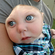 We feel the looks and stares': Father of little Jaxon born without most of his skull reveals the horror abuse he and his wife have received from trolls who say they should have had him aborted<br /> <br /> The father of an infant who has celebrated his first birthday despite missing most of his brain and skull has spoken out about the abuse he's received after the inspirational story was shared on social media.<br /> Brandon Buell's son Jaxon was given only days to live at birth because of a rare neural-tube condition called Anencephaly seen while he was developing in the womb.<br /> News of the child's miraculous survival was read by hundreds of thousands after his first birthday in August, though some said that Brandon and his wife Brittany were 'selfish' or should have aborted the child to avoid the pain he will suffer.<br /> <br /> Brandon responded to the criticism in a heartfelt Facebook post Saturday night, saying his wife and his decision to keep their son was 'our choice, and only our choice'.<br /> <br /> Brandon and Brittany, who are devout Christians, were told by doctors that Jaxon would probably not survive the pregnancy.<br /> Doctors gave them the option to abort at 23 weeks, though Brandon said 'no doctor could tell us exactly what was wrong or what to expect'. <br /> About one in 4,859 babies in the United States will be born with Anencephaly and usually die shortly after birth, according to the Center for Disease Control and Prevention.<br /> The father said that he and Brittany asked if the child was suffering in the womb or if there were potential health risks to her during the delivery.<br /> <br /> He said that there would have been a 'different discussion' if the answers to those questions had been yes.<br /> 'However, that wasn't the case, and it was our choice, and only our choice. Jaxon was our baby, and we only had one shot to do everything we could for him,' he said.<br /> Brandon added that he and Brittany didn't want to 'play God'.<br 