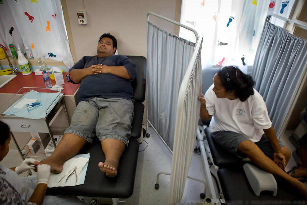 Diabetic patients getting their feet treated at the Nauru Center of Public Health. Feet of Diabetic often gets damaged due to the loss of sensitivity...Nauru has the world's highest level of type 2 diabetes, with more than 40% of the population affected. Life expectancy on Nauru in 2006 was 58 years for males and 65 years for females..Nauru is the world's fattest country, with 94% of its population being overweight. One of the main reason is eating habits of Nauruans. .They rarely cook. Traditional food includes fish and coconut. But these days they especially enjoy Spam and Corned Beef and eat a lot of rice. Nauruans do not grow any vegetables...Nauru, officially the Republic of Nauru is an island nation in Micronesia in the South Pacific.  Nauru was declared independent in 1968 and it is the world's smallest independent republic, covering just 21 square kilometers..Nauru is a phosphate rock island and its economy depends almost entirely on the phosphate deposits that originate from the droppings of sea birds. Following its exploitation it briefly boasted the highest per-capita income enjoyed by any sovereign state in the world during the late 1960s and early 1970s..In the 1990s, when the phosphate reserves were partly exhausted the government resorted to unusual measures. Nauru briefly became a tax haven and illegal money laundering centre. From 2001 to 2008, it accepted aid from the Australian government in exchange for housing a Nauru detention centre, with refugees from various countries including Afghanistan and Iraq..Most necessities are imported on the island..Nauru has parliamentary system of government. It had 17 changes of administration between 1989 and 2003. In December 2007, former weight lifting medallist Marcus Stephen became the President.