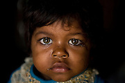 Meenakshi, 5, a child born with mental and physical disabilities from a gas-affected mother is portrayed inside her home in the impoverished Oriya Basti Colony, Bhopal, Madhya Pradesh, near the former Union Carbide industrial complex. Over 30.000 people are here at risk by the ongoing underground water contamination.