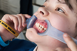 A teenager having orthodontic braces fitted at the dentist