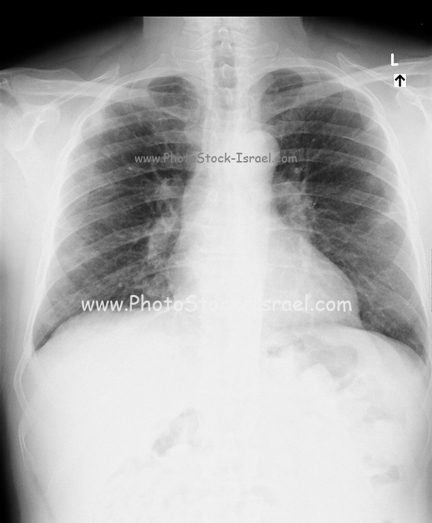 Chest X-ray of a 62 year old male suffering from cough and fever.