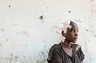 A young burn patient rests outside a hospital in Lira, Uganda. The medical facility is operated by the nonprofit African Youth Initiative Network, or AYINET, which helps victims of the conflict between the Lord's Resistance Army and the Ugandan government in northern Uganda.