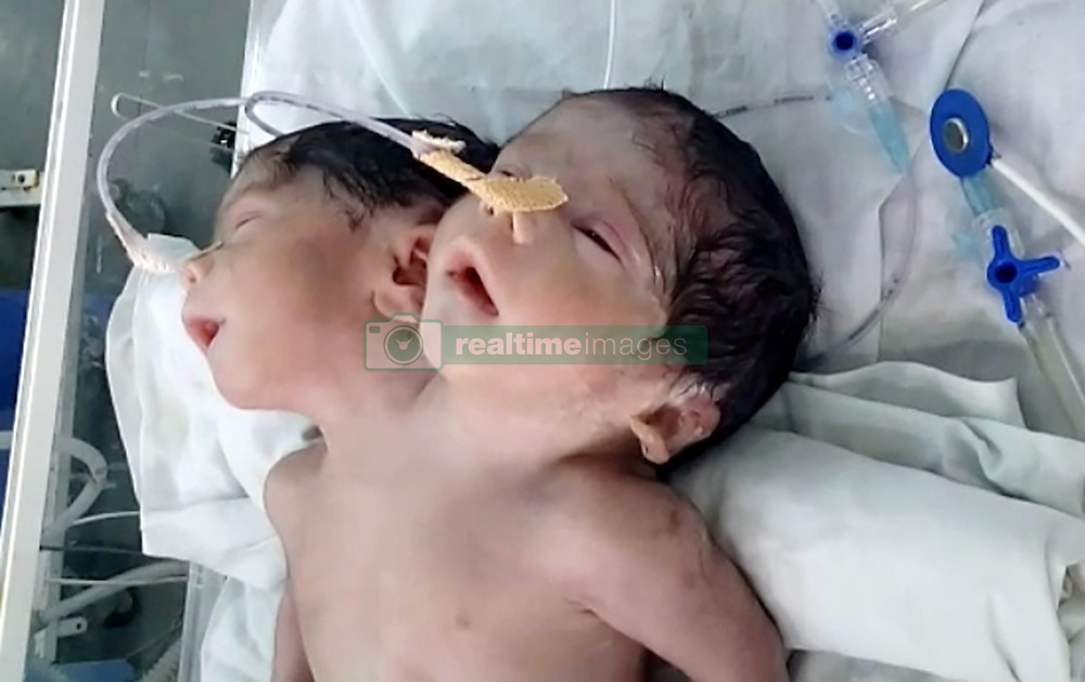 October 4, 2016 - Ajmer, RAJASTHAN, INDIA - RAJASTHAN, INDIA - OCTOBER, 03, 2016: A two-headed baby, alive, just an hour after it was born at Jawaharlal Nehru Medical College in Rajasthan, India.....The Indian mother, 20, gave birth to the two-headed baby boy but died 32 hours after the birth. The baby boy was born via C-section and weighing 5lbs 7oz, with two heads, two necks and two spines trapped in one body.....Pictures Supplied by: Cover Asia Press (Credit Image: © Cover Asia Press/Cover Asia via ZUMA Press)