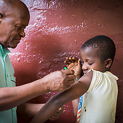The Feather Test is a simple way to check if a skin rash could be leprosy. If the patient, with eyes closed, cannot tell which part of their body the feather is touching, it means that their senses in that part of the body is dead, which is a sign of leprosy.