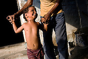 Amit, 5, a child born with mental and physical disabilities from gas-affected parents is smiling at his father, Raju, 41, while trying to walk with his help inside their home in the impoverished Blue Moon Colony, Bhopal, Madhya Pradesh, near the former Union Carbide industrial complex. Over 30.000 people are here at risk by the ongoing water contamination.