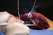 """Mark W. Connolly, M.D., chief of Cardiovascular and Thoracic Surgery at St. Michael's Hospital, harvests a mammary artery  from a patient in an operating room of the hospital in Newark, New Jersey, Wednesday, January 17, 2007. This particular procedure is known as OPCAB--off-pump coronary artery bypass.  Although it involves opening the patient's chest cavity, it is called a """"minimally invasive"""" procedure since the patient's heart is operated on while still beating, avoiding use of the heart lung machine which is known to add considerable stress to a patient's body.  Special instruments are used to stabilize the heart while the doctor performs surgery.  Many patients are being directed by doctors and consultants to have their heart problems treated with stents--a minimally invasive procedure that does not involve opening the chest cavity--rather than considering the conventional open-heart bypass procedure as a viable option.  It is believed that doctors and consultants pushing stents often do not fully inform their patients of the alternatives that exist, and there is mounting evidence to suggest that thousands of patients die each year who could have lived longer had they undergone bypass surgery."""