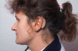 Woman with hearing aid positioned behind ear,