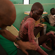 April 30, 2012 - Kauda, Nuba Mountains, South Kordofan, Sudan: Sudan People?s Liberation Movement (SPLA-N) rebel soldiers lie in a hospital in Gidel village, after being wounded by a bomb dropped by the Sudanese airforce, in the rebel-held territory of the Nuba Mountains in South Kordofan...SPLA-North, a historical ally of SPLA, South Sudan's former rebel forces, has since last June being fighting the Sudanese Army Forces (SAF) over the right to autonomy and of the end of persecution of Nuba people by the regime of President Bashir. (Paulo Nunes dos Santos/Polaris)