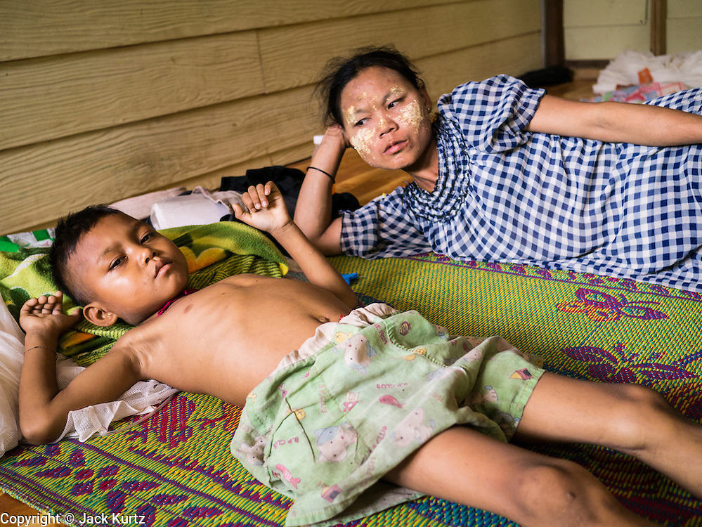 21 MAY 2013 - MAE KU, TAK, THAILAND:  A boy with a severe case of malaria lays in his bed while he awaits a lifesaving blood transfusion at the Mawker Thai SMRU clinic in Mae Ku, Thailand. Health professionals are seeing increasing evidence of malaria resistant to artemisinin coming out of the jungles of Southeast Asia. Artemisinin has been the first choice for battling malaria in Southeast Asia for 20 years. In recent years though,  health care workers in Cambodia and Myanmar (Burma) are seeing signs that the malaria parasite is becoming resistant to artemisinin. Scientists who study malaria are concerned that history could repeat itself because chloroquine, an effective malaria treatment until the 1990s, first lost its effectiveness in Cambodia and Burma before spreading to Africa, which led to a spike in deaths there. Doctors at the Shaklo Malaria Research Unit (SMRU), which studies malaria along the Thai Burma border, are worried that artemisinin resistance is growing at a rapid pace. Dr. Aung Pyae Phyo, a Burmese physician at a SMRU clinic just a few meters from the Burmese border, said that in 2009, 90 percent of patients were cured with artemisinin, but in 2010, it dropped to about 70 percent and is now between 55 and 60 percent. He said the concern is that as it becomes more difficult to clear the parasite from a patient, progress that has been made in combating malaria will be lost and the disease could make a comeback in Southeast Asia.  PHOTO BY JACK KURTZ