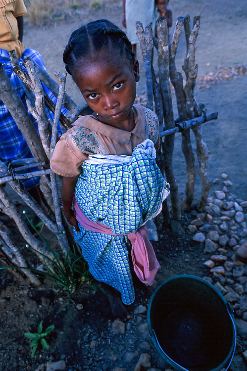 Girl with eye infection, the desert south near Betioky, Madagascar
