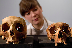 © Licensed to London News Pictures. 18/10/2012. LONDON, UK. A Museum of London employee examines two dissected skulls at the launch of a new exhibition at the museum in London today (18/10/12). The exhibition, entitled 'Doctors Dissection and Resurrection Men' runs from 19th October - 14th April 2013 and includes remains previously used for medical dissection that were found during archeological digs at the Royal London Hospital in Whitechapel.   Photo credit: Matt Cetti-Roberts/LNP