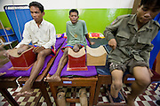 27 JUNE 2006 - SIEM REAP, CAMBODIA: Clients at Handicap International wait for physical therapy to start in Siem Reap, Cambodia. Handicap International helps Cambodians maimed by mines and unexploded ordinance as well as traffic accidents and disease adjust to a life without limbs. Cambodians are still wrestling with the legacy of the war in Vietnam and subsequent civil wars. At one time it was the most heavily mined country in the world and a vast swath of Cambodia, along the Thai-Cambodian border, is still mined. In 2004, more than 800 people were killed by mines and unexploded ordinance still found in the countryside.  Photo by Jack Kurtz