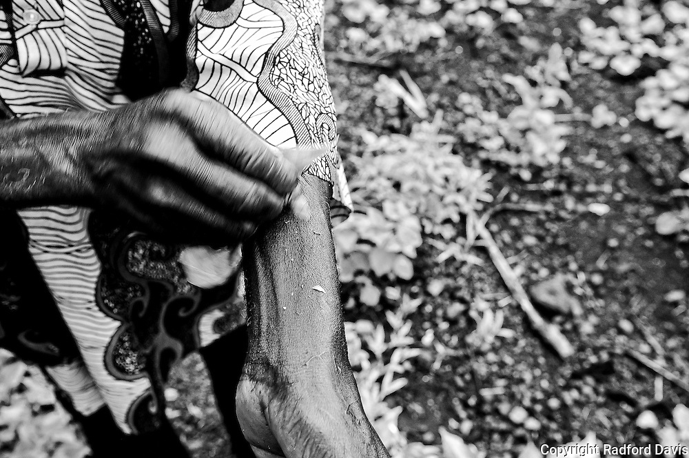 The Chief and healer in the village of Jimmi village, Sierra Leone, shows me how to cure snake bite. Here, rubbing his secret combination of leaves on the wound.