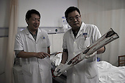 ZHUMADIAN, CHINA - SEPTEMBER 15: (CHINA OUT) <br /> <br /> Man Survives After Guard Bar Pierces Through Body<br /> <br /> A doctor presents a part of fence after a surgery at a hospital on September 15, 2014 in Zhumadian, Henan Province of China. The man survived after a car crash. He drove a car and crashed into a fence on a road on Monday morning, and a part of fence pierced through his chest. <br /> ©Exclusivepix