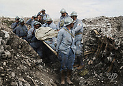 Colorized photographs soldiers from the World War One<br /> <br /> With his impressive colorized photographs of the World War One, Frédéric Duriez gives us a new look at the conflict that ravaged the world between 1914 and 1918, revealing the difficult daily life of the French soldiers. <br /> <br /> Photo Shows: Cote 304 on August 25, 1917. Stretcherers raising the dead on the conquered ground<br /> ©Frédéric Duriez/Exclusivepix Media
