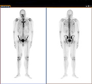 Full body Positron emission tomography (PET) scan of an adult male. Front view on left back view on right
